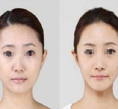 面部整体美与面型和五官的关系